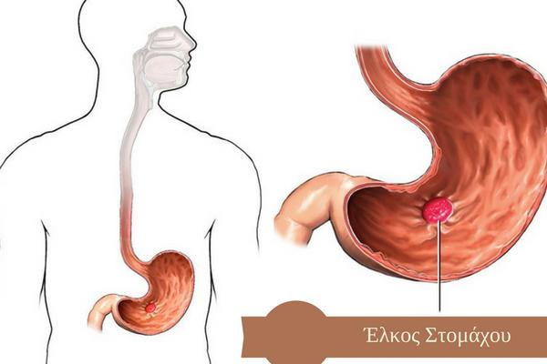 έλκος στομάχου και καούρα