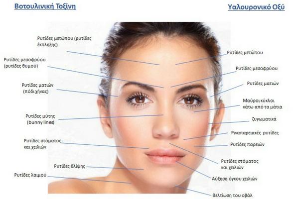 υαλουρονικό οξύ - βοτουλινική τοξίνη - botox